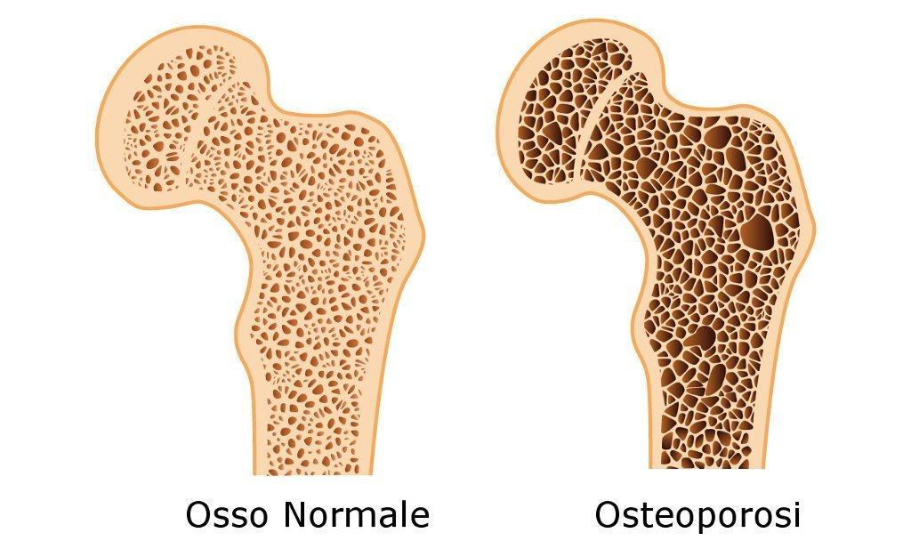 Osteoporosi: meglio prevenire che curare